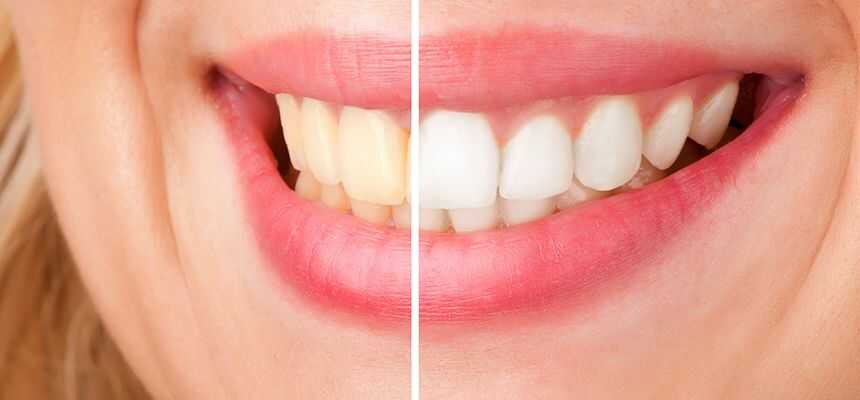 How Often Should I Whiten My Teeth