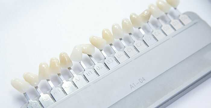 Other Teeth Whitening Methods