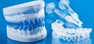 Teeth Whitening Costs