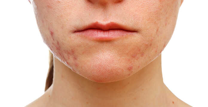 Does Microdermabrasion Bring Acne Out