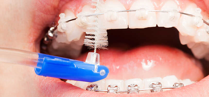 Waterpik Water Flosser vs Flossing - Which Is Better For