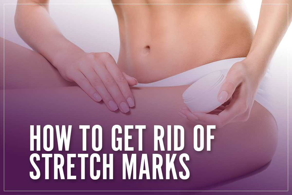 Moisturise To Prevent Stretch Marks