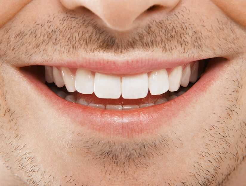 How Does An LED Light Make Your Teeth Whiter [Ultimate Guide]