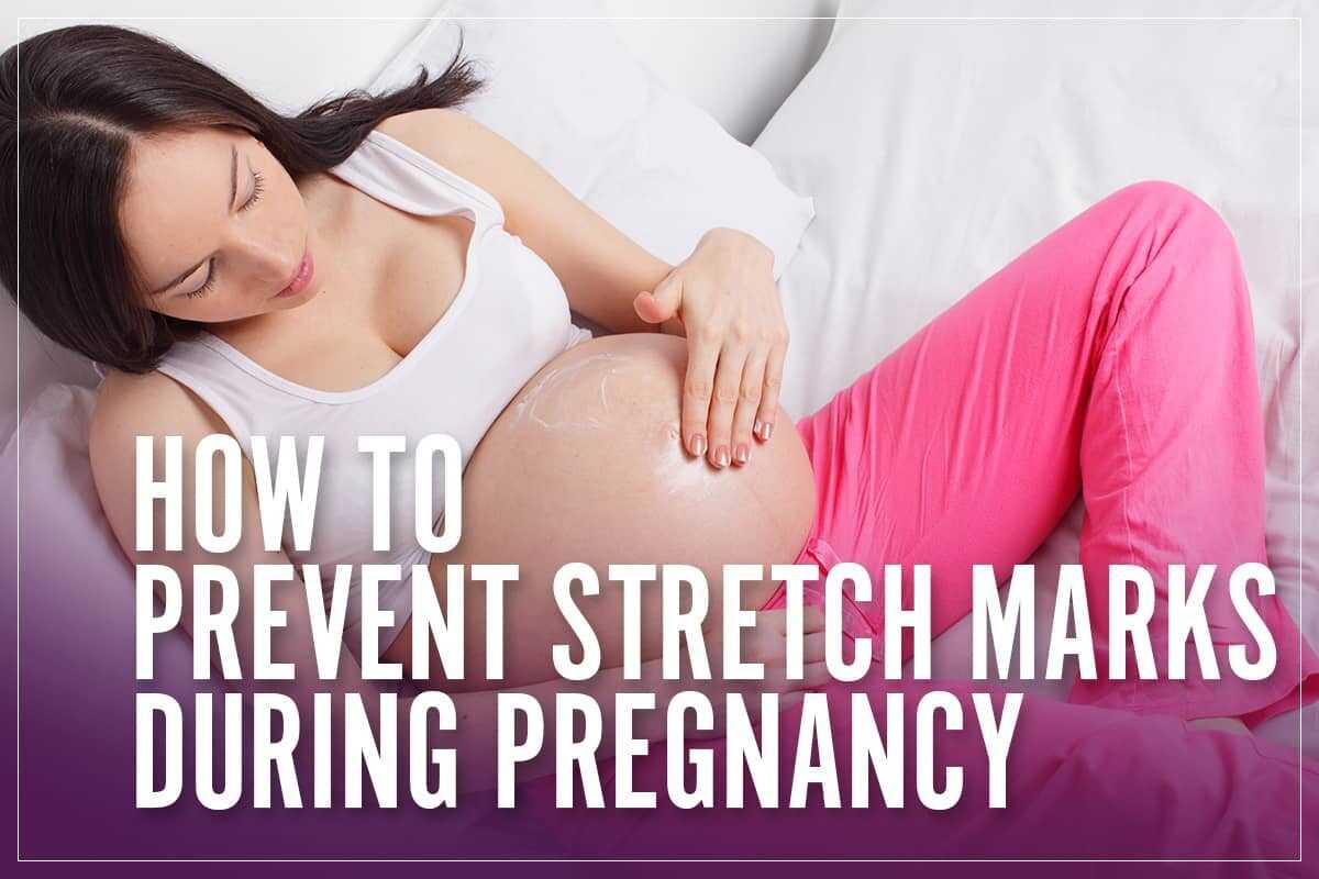 Prevent Stretch Marks In Pregnancy