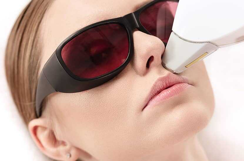 IPL Hair Removal Face