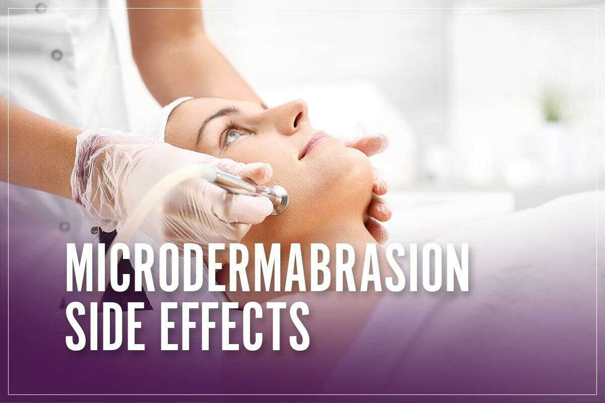 Microdermabrasion Side Effects