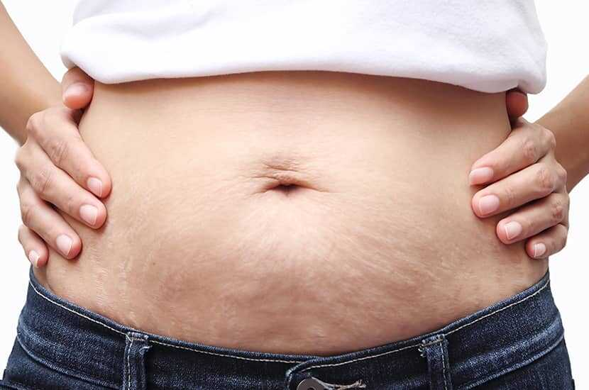 Prevent Stretch Marks Weight Gain
